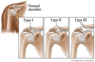Dislocated clavicle treatment